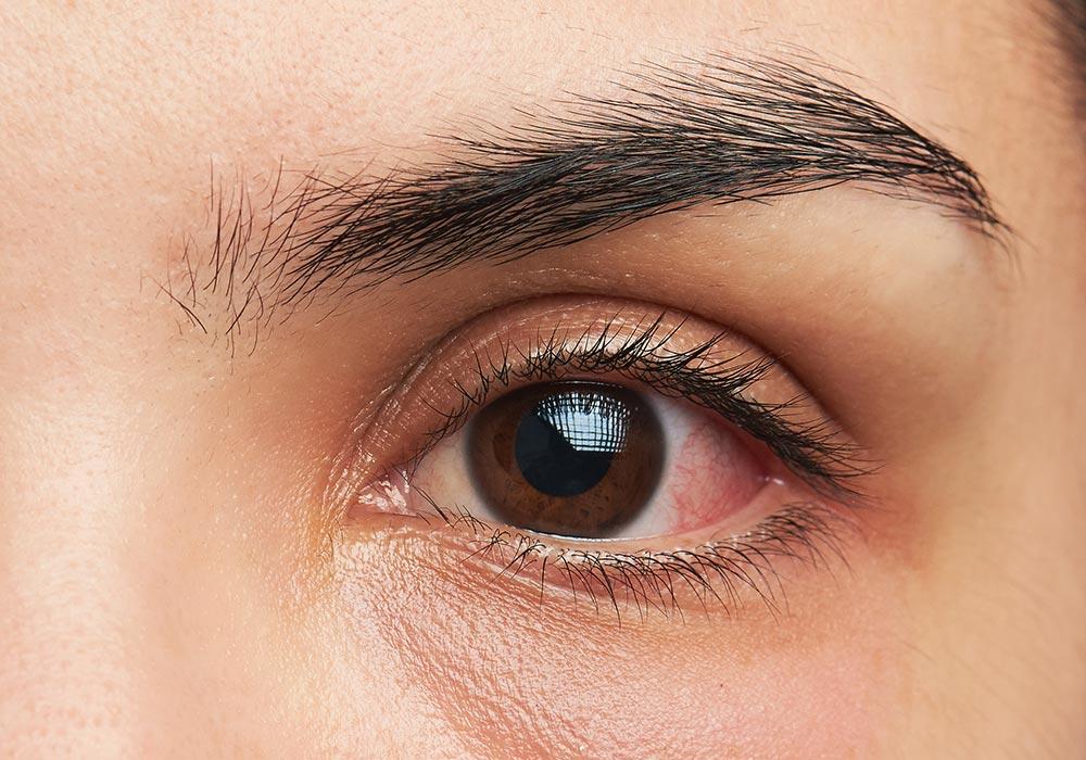 Sensitive eyes makeup