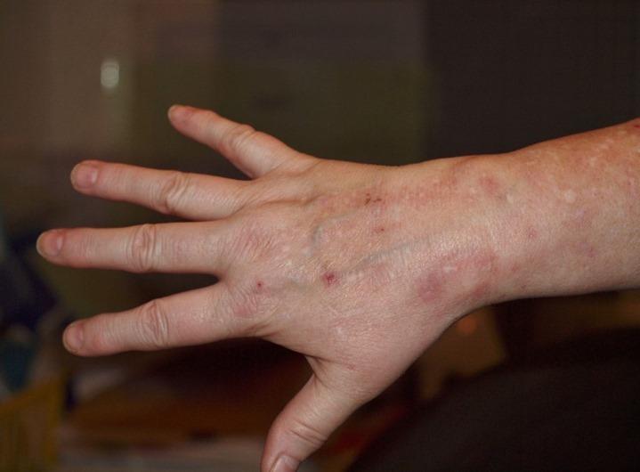 3-rash.jpg