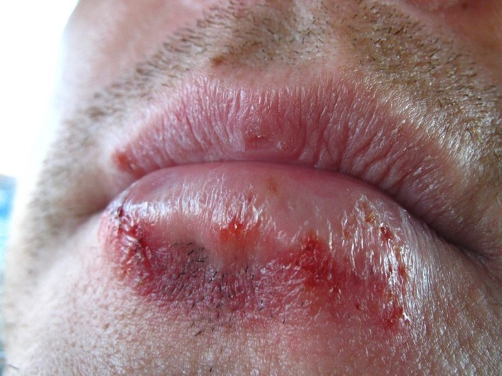 7-herpes-infection.jpg