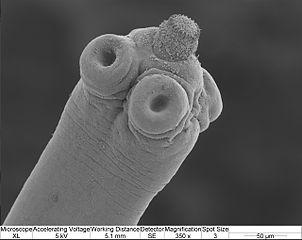 hymenolepis-scolex-302-240-13.jpg