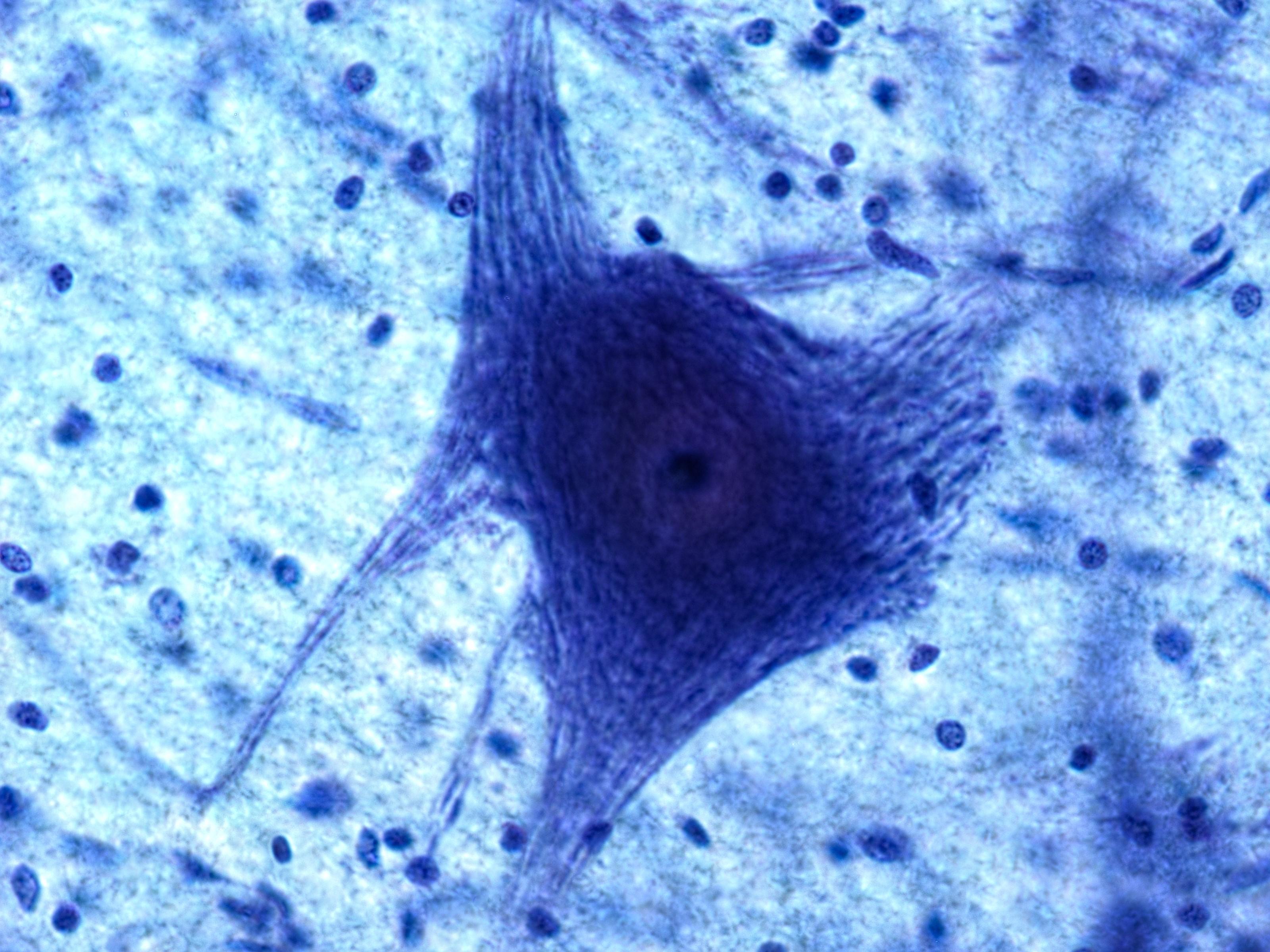 glial_neuron.jpg
