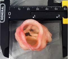 heart_valve_bioprinting.jpg