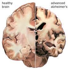Alzheimers_brain.jpg