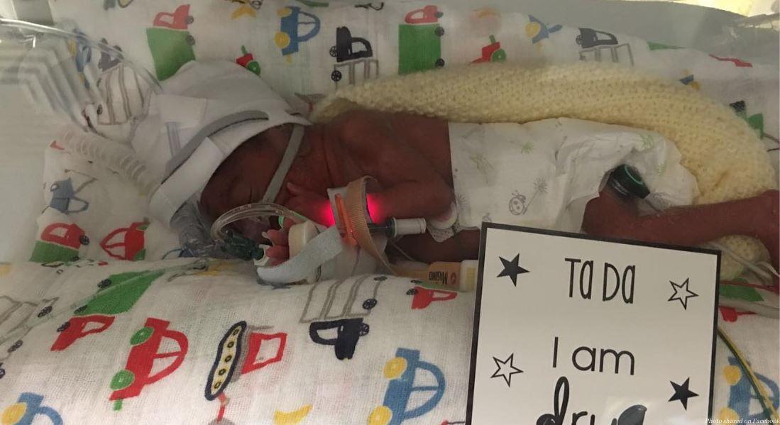Un enfant né 15 semaines trop tôt a lutté pour sa vie et s'épanouit aujourd'hui