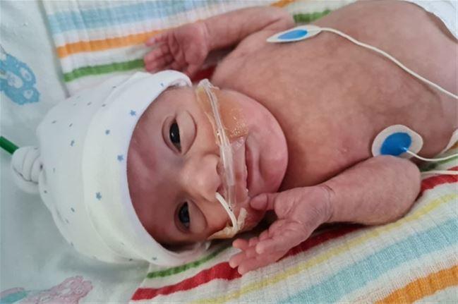 Le minuscule bébé Lucas est né 4 mois avant terme et pesait à peine 625 g
