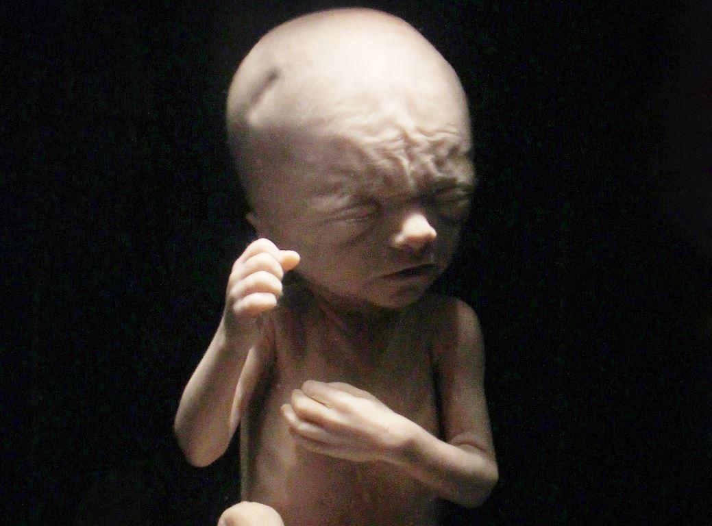 fetus-23-semaines-2.jpg
