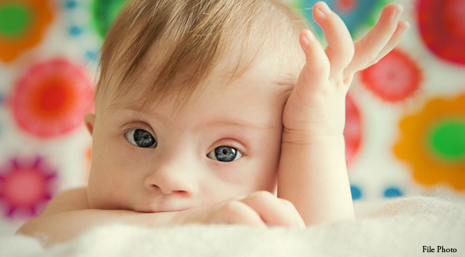 baby-down-syndrome_(1).jpg
