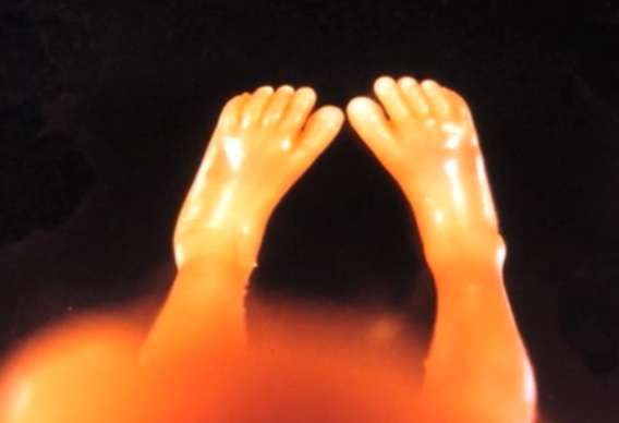 Dr.-Sacco-images-of-aborted-fetuses-feet.jpg