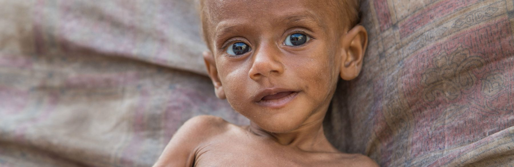 Yemen needs COVID-19 aid