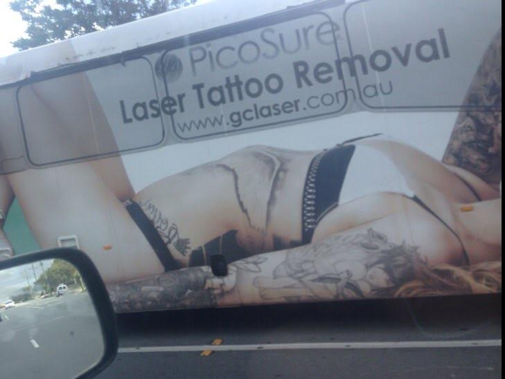 goldcoastbusadtattooremoval.jpeg