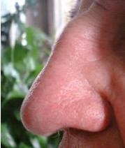 photo of human nose