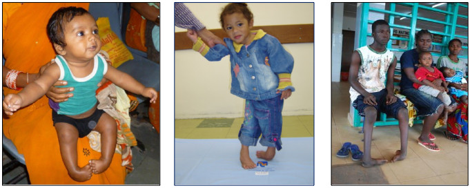 images of three young patients