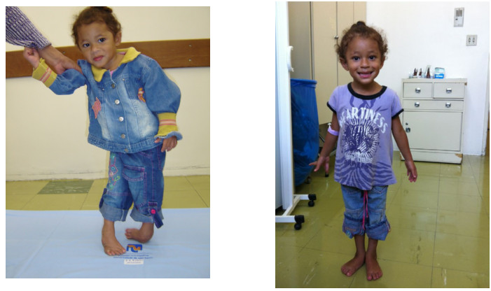 images of Yasmin before and after treatment