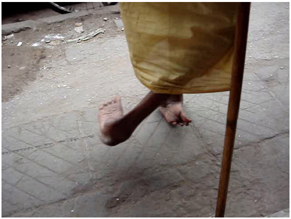image of man who walks on the sides/tops of his feet