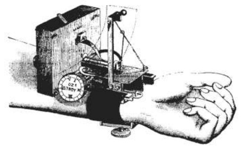 drawing of device strapped to wrist of a patient