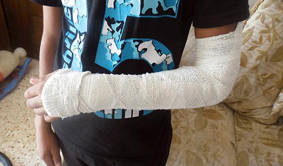 أصيب الطفل (أ.ع، 14 عاما) من سكان محافظة أريحا والأغوار، بكسر في يده اليسرى، ورضوض في مختلف أنحاء جسده، جراء الاعتداء عليه من قبل أحد أفراد الشرطة الفلسطينية