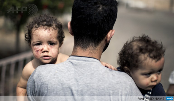 A Palestinian man holds his daughters, Shada and Lama al-Ejla, as he leaves al-Shifa hospital on July 18 in Gaza City.