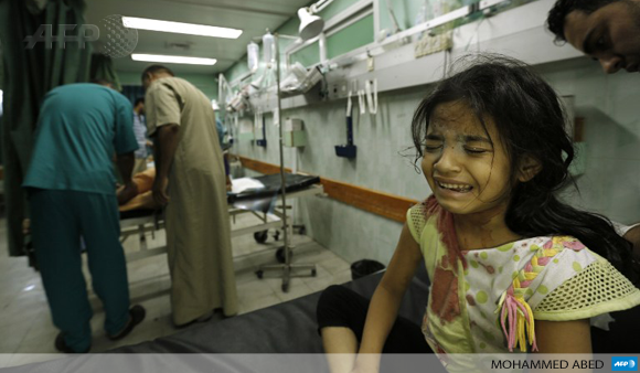A displaced Palestinian girl receives treatment at the Kamal Odwan hospital in Beit Lahia on July 31.
