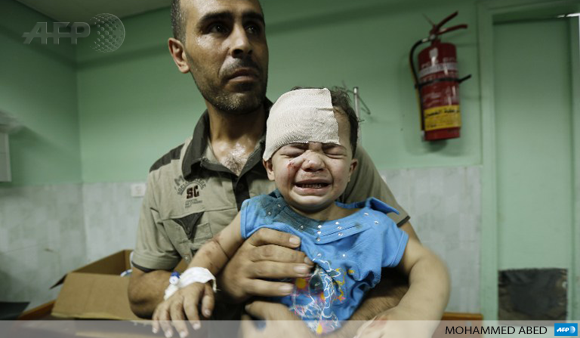 A Palestinian child, wounded in an Israeli strike, receives treatment at Kamal Adwan hospital in Beit Lahia on July 30.