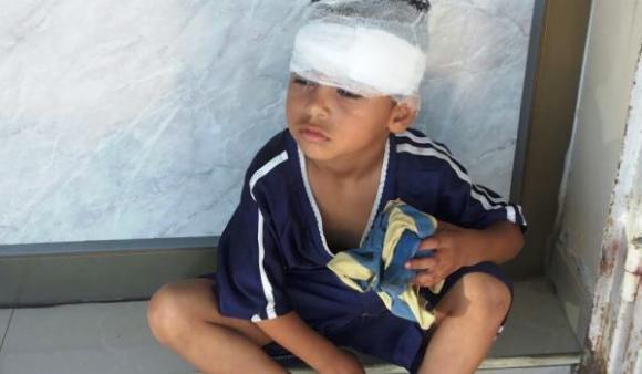 Karim Hussein al-Atawneh sustained a head injury during Israeli airstrikes on Al-Zuwaida in central Gaza on Wednesday.