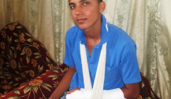 Amro J., 16, was shot near the border fence in Gaza by Israeli soldiers on May 17, 2014.