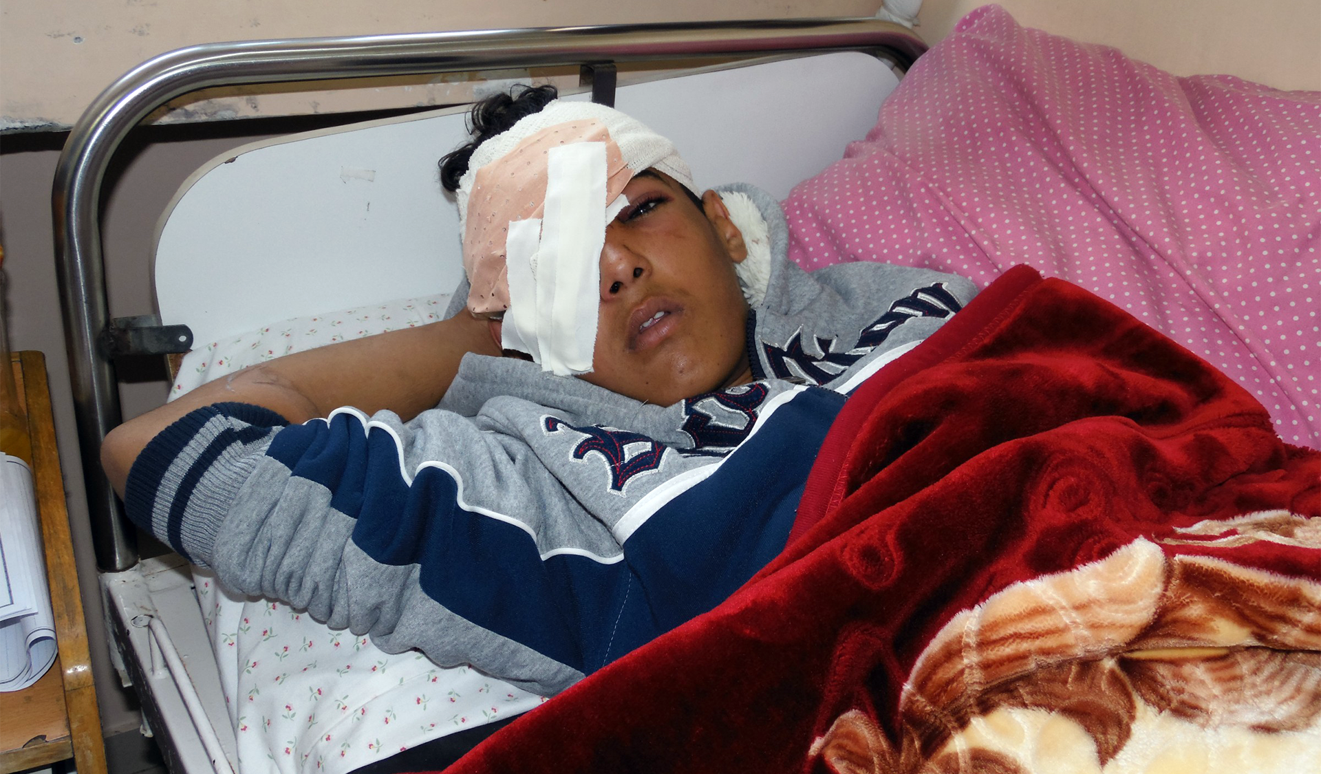 Israeli forces shot 14-year-old Mohammad Farani in the face with a tear gas canister, causing skull fracture and loss of his right eye. (Photo: DCIP / Mohammad Abu Rukbeh)
