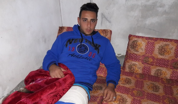 Israeli forces shot Ahmad al-Najjar in the left leg while the teen was participating in clashes on January 11, 2018.  (Photo: DCIP /  Mohammad Abu Rukbeh )