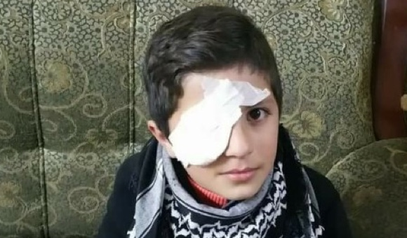 Ahmad Awais suffered an eye injury during clashes near Nablus. (Photo: Courtesy of Awais family)