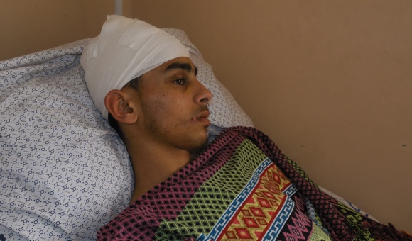 Mohammad Saleh, 16, is still recovering from a head injury on February 9 that may cause permanent damage. (Photo: DCIP / Mohammad Abu Rukbeh)