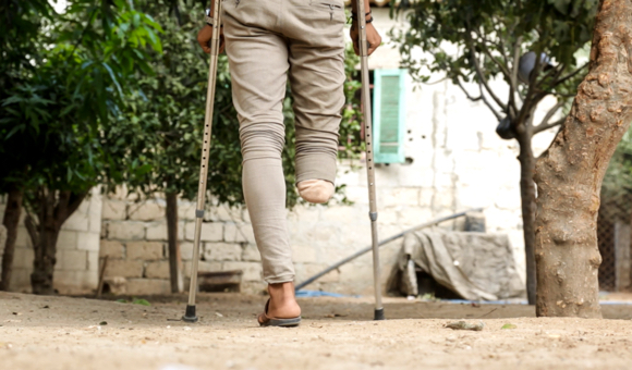 Mohammad adjusts to walking with crutches. (Photo: DCIP / Saud Abu Ramadan)