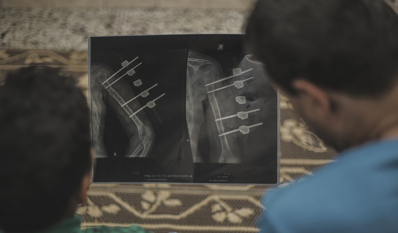 Samer and his father look at an X-ray of Samer's injured arm. (Photo: DCIP / Mohammad Ibrahim)