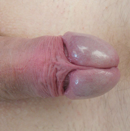 The intact penis with foreskin retracted.