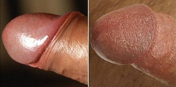 Comparison between an intact and circumcised penis head