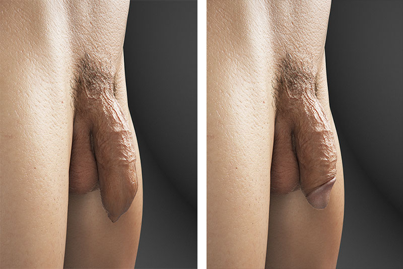 Side by side 3d comparison of circumcised and intact penis.