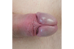 The intact penis with foreskin retracted. Notice the sensitive, shiny, moist quality of the glans, which is so because it has been protected by the foreskin from contact with outside elements.