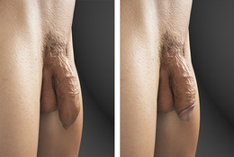 A comparison between a circumcised and uncircumcised penis in the flaccid state.