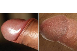 "The penis on the left is intact, like those above. The penis on the right has been circumcised some time ago. Notice how the glans is unprotected and has dried out and hardened (""keratinised"") due to constant contact with external abrasion."