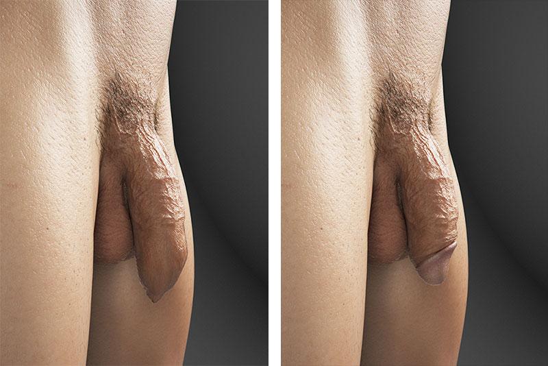 Uncircumcised Erect Penis Pictures