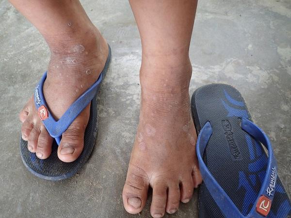 Kabat_-_feet.JPG