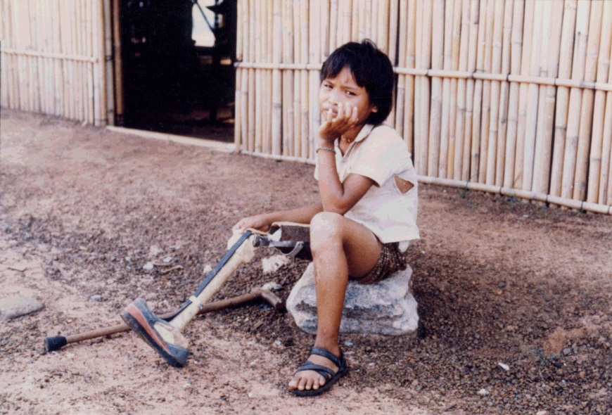 c_J-P-Dousset_ANGELI__one_of_our_first_beneficiaries_in_Thailand.jpg