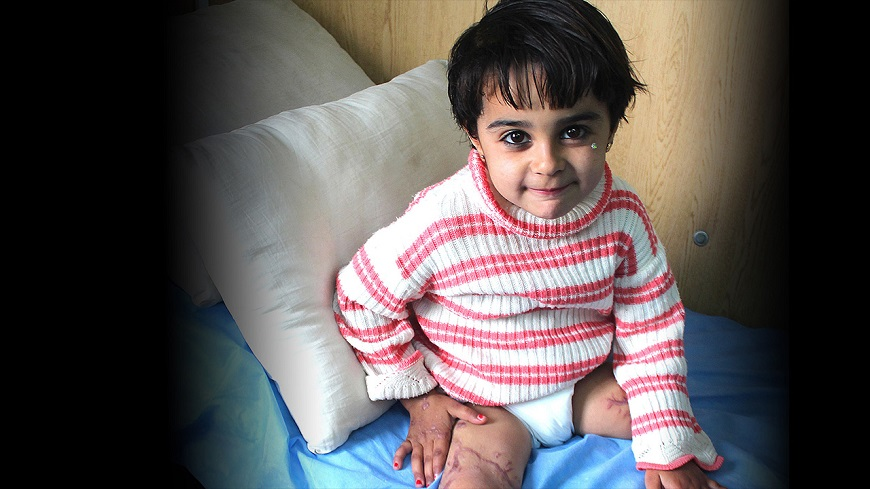 c_Elisa-Fourt_Handicap-International__In_jordan_refugee_child_Malak_receives_help_from_Handicap_International.jpg