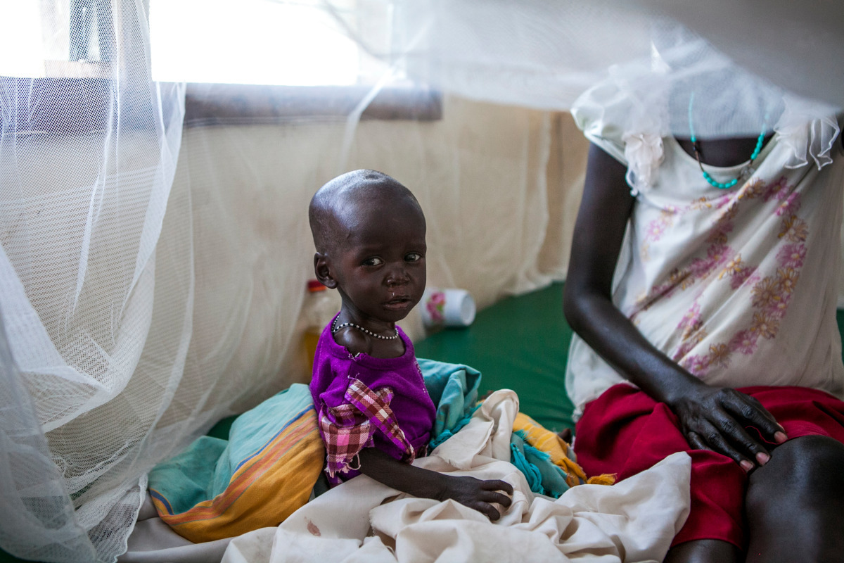A malnourished baby sits next to his mother in South Sudan.