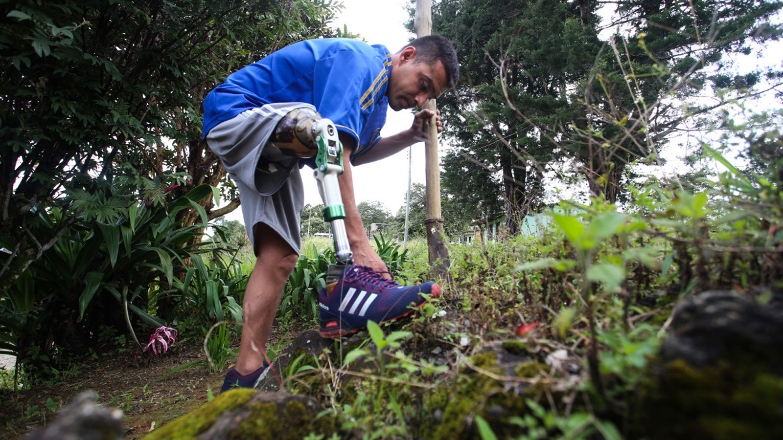Jose lost his leg after being injured by a landmine in Colombia