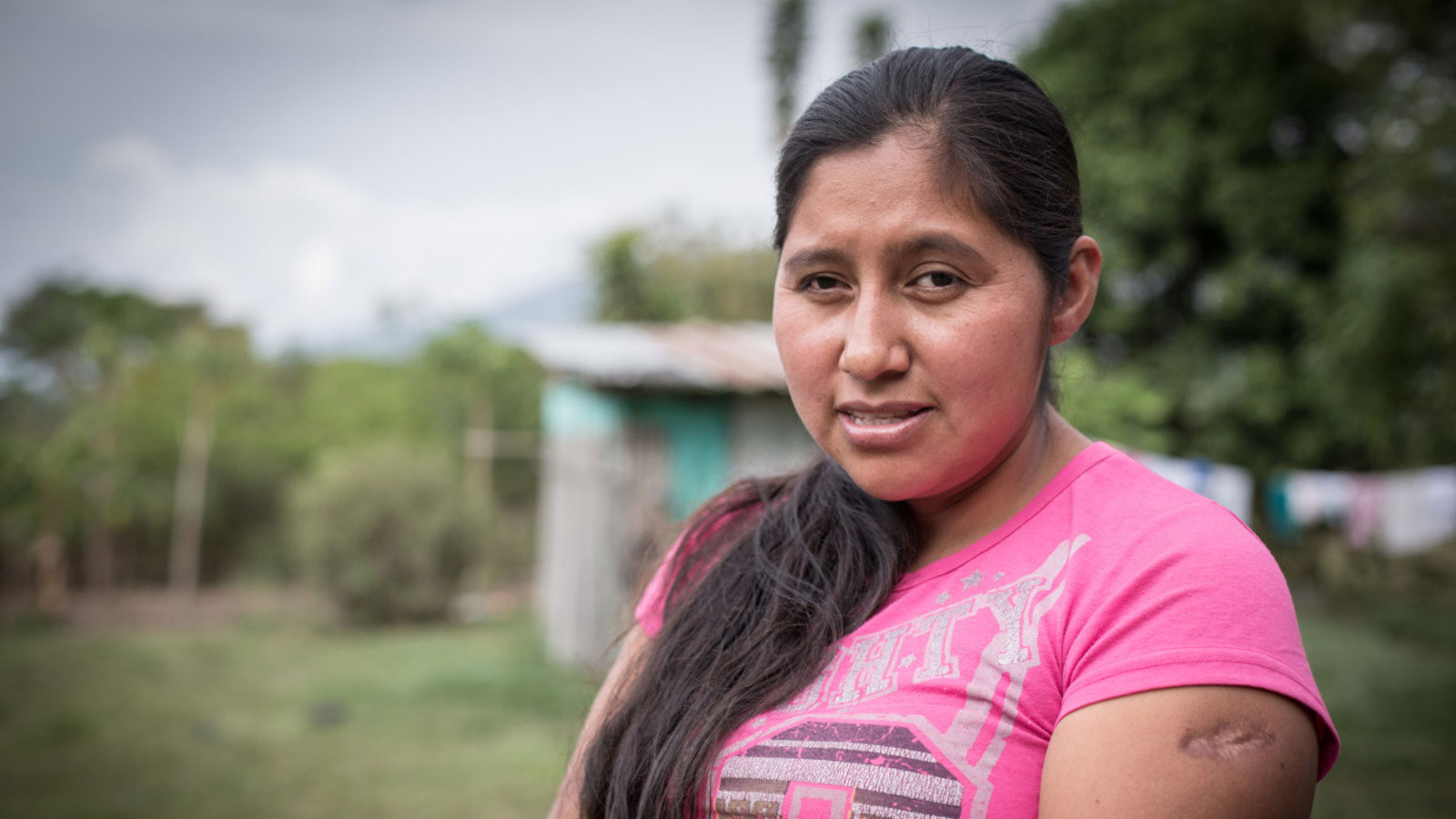 "Colombia | ""Within seconds, my life was torn apart"""