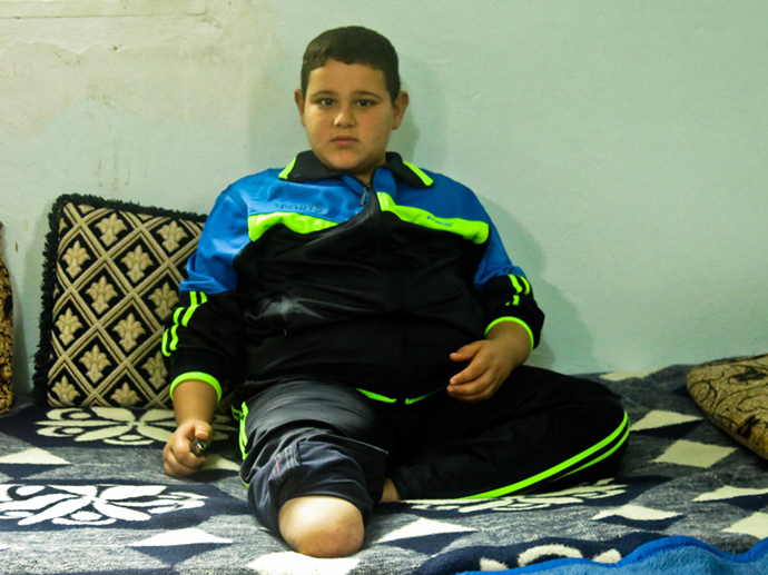 c_E-Fourt_Handicap-International__Mohamad_from_Syria_injured_in_a_bombing_now_lives_in_Jordan.jpg
