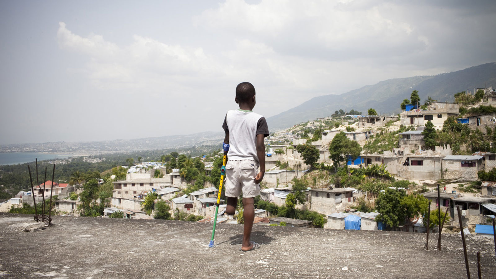 Balnave Ulysse near the tent where he lives in Haiti