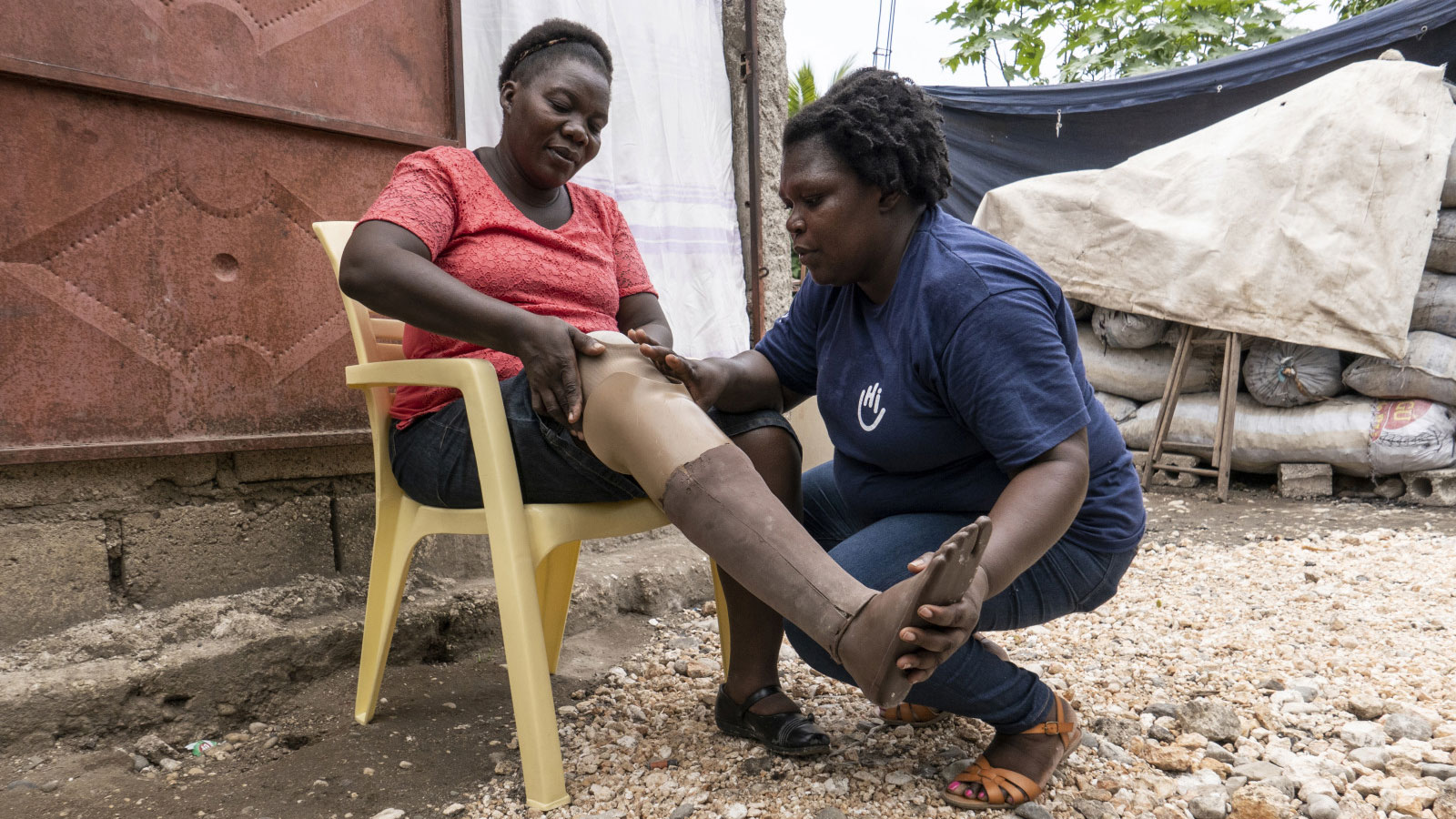 Marie -an-HI-physical-therapist -helps-Maryse-put-on-her-prosthetic-limb-in-Haiti