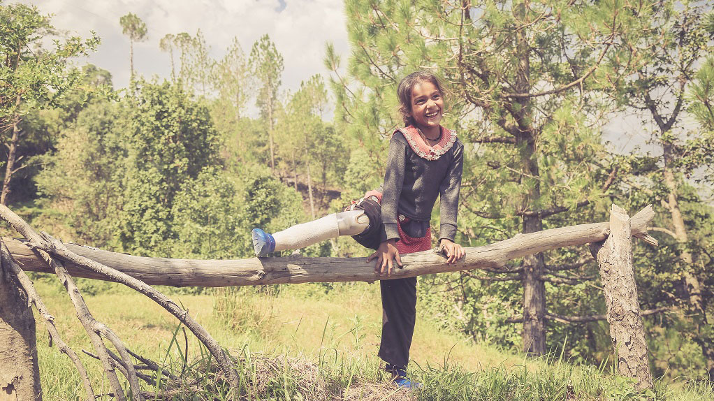 Manju-lifts-her-prosthetic-leg-over-a-tree-branch-in-Nepal