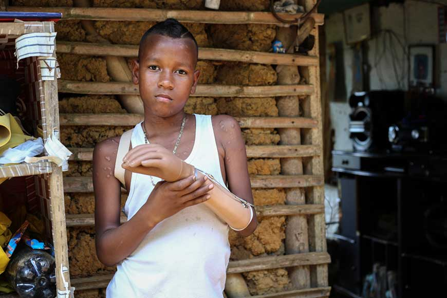 Jemerson, 12, from Colombia, holds his prosthetic arm after losing it in a mine explosion.