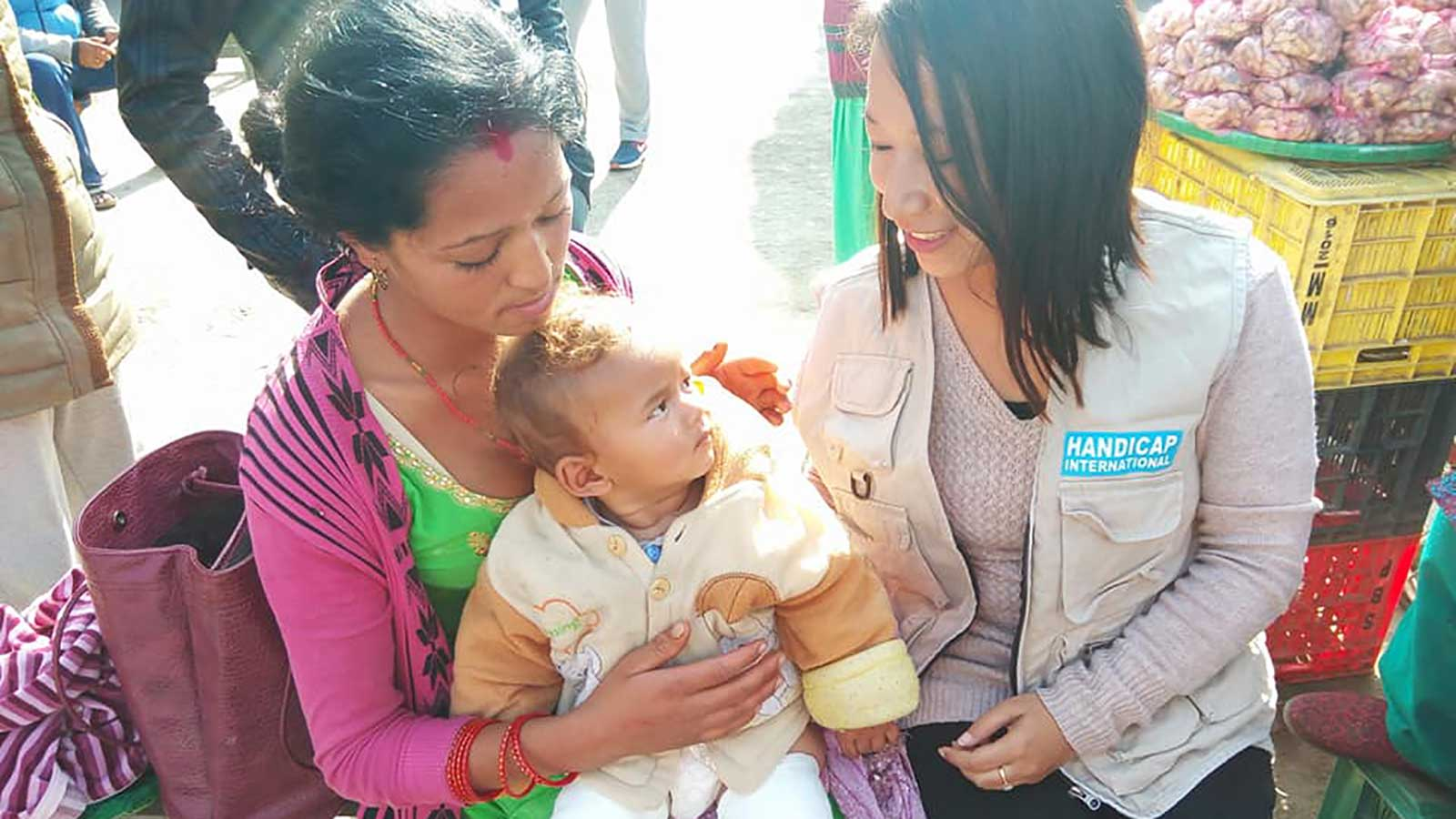 Clubfoot | Early detection becomes a ray of hope!